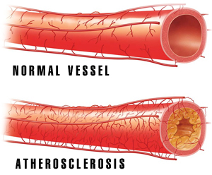 atherosclerosis at coronary heart disease